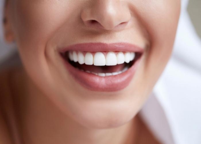 Evde 5 Diş Beyazlatma Yöntemi