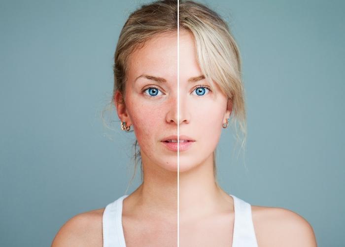Yüzde Kızarıklık Neden Olur? Yüz Kızarıklığı Nasıl Geçer?