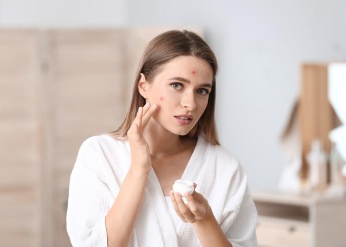 Fungal Akne: Nedir, Nasıl Tedavi Edilir?